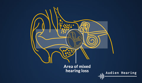 Diagram showing where in the ear mixed hearing loss has an effect