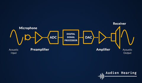 Schematic of the technology used in digital hearing aids