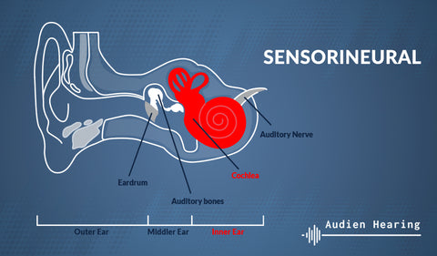 Diagram showing the anatomy of the ear and sensorineural hearing loss