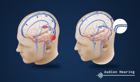 Diagram of the human brain and ear in relation to surgery for tinnitus