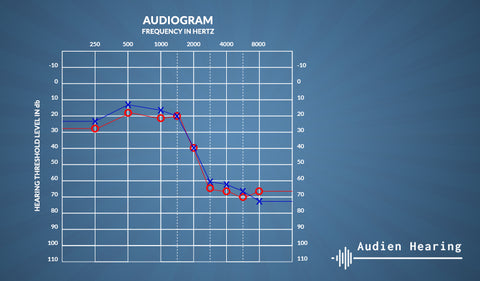 Image of an audiogram displaying someone's level of hearing loss after a hearing test