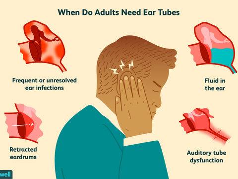 Why adults need ear tubes