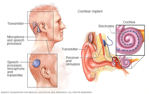 Diagram of Cochlear Implant