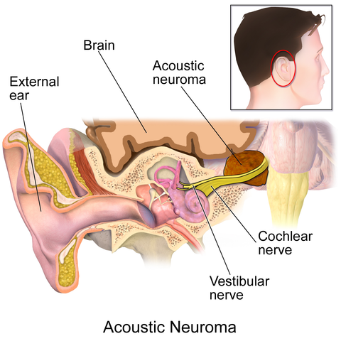 Acoustic Neroma and Cochlear nerve diagram of ear
