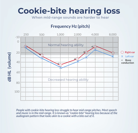 cookie-bite hearing loss