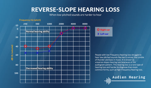 Reverse slope low frequency hearing loss diagram