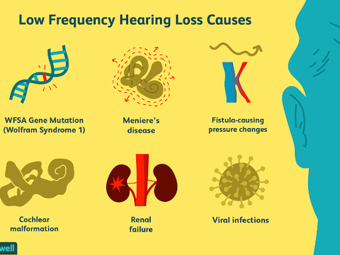 low frequency hearing loss causes