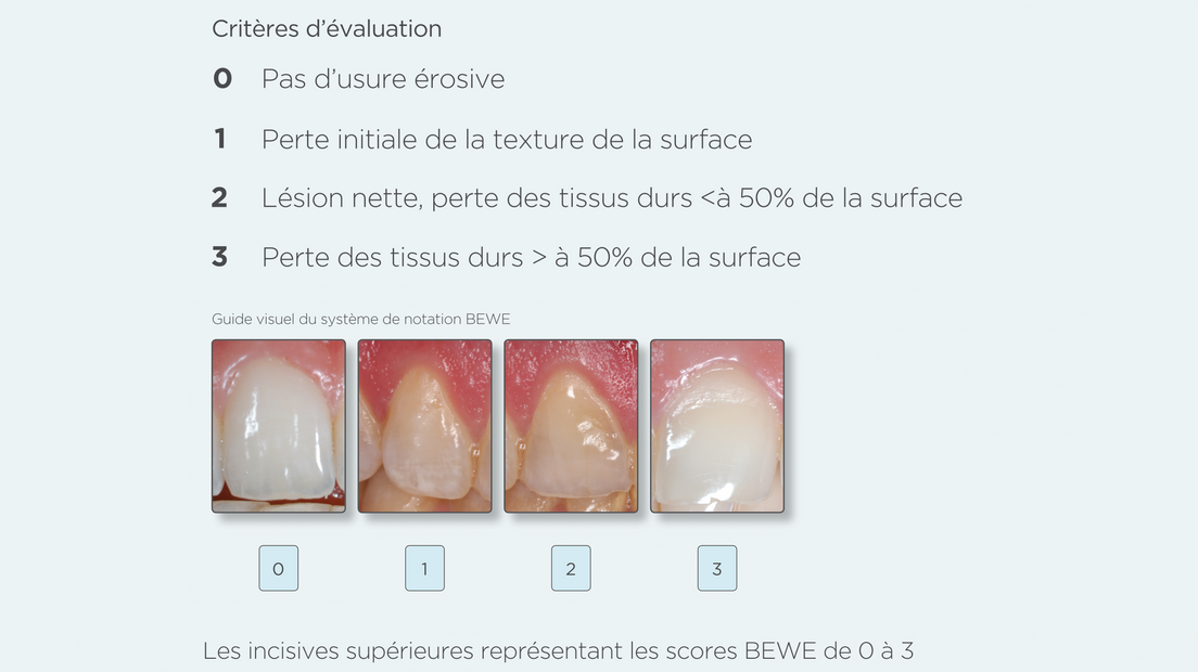 diagnostic de l'érosion de l'émail chez les patients