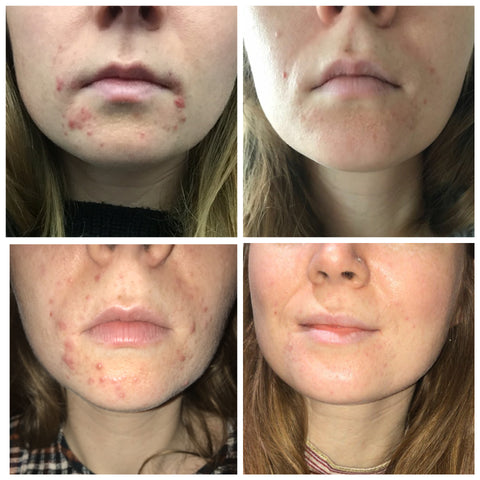 SkinClear Elixir before and after acne results
