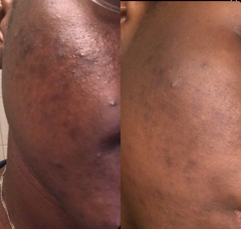 Raw Holistic Skincare Before and After