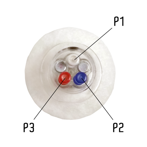 Catheter Access Buttons™ with CannuLock™