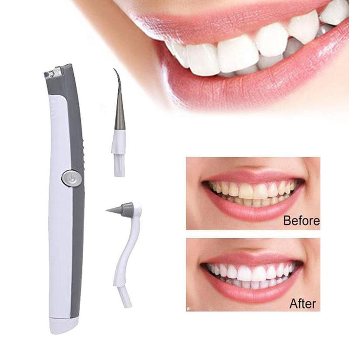 Electric Ultrasonic Tooth Stain Eraser Plaque Remover - MomProStore