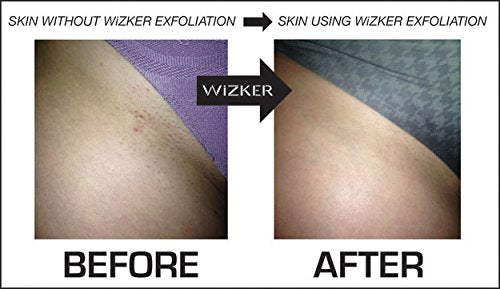 Wizker Waterproof Exfoliating Brush Stops Ingrown Hair Razor Bumps Shaving Face Body Scrubber