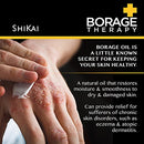 Image of ShiKai - Borage Therapy Plant-Based Dry Skin Lotion, Soothing & Moisturizing Relief For Dry, Irritated & Itchy Skin, Non-Greasy, Sensitive Skin Friendly (Unscented, 8 Ounces)