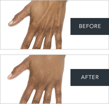 Before After Hands