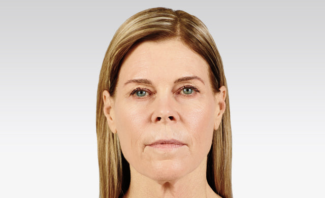 juvederm voluma before after