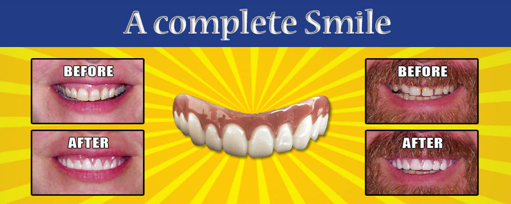 Quick affordable smile hollywood smile by dental distortions hollywood smile tooth veneers solutioingenieria Images