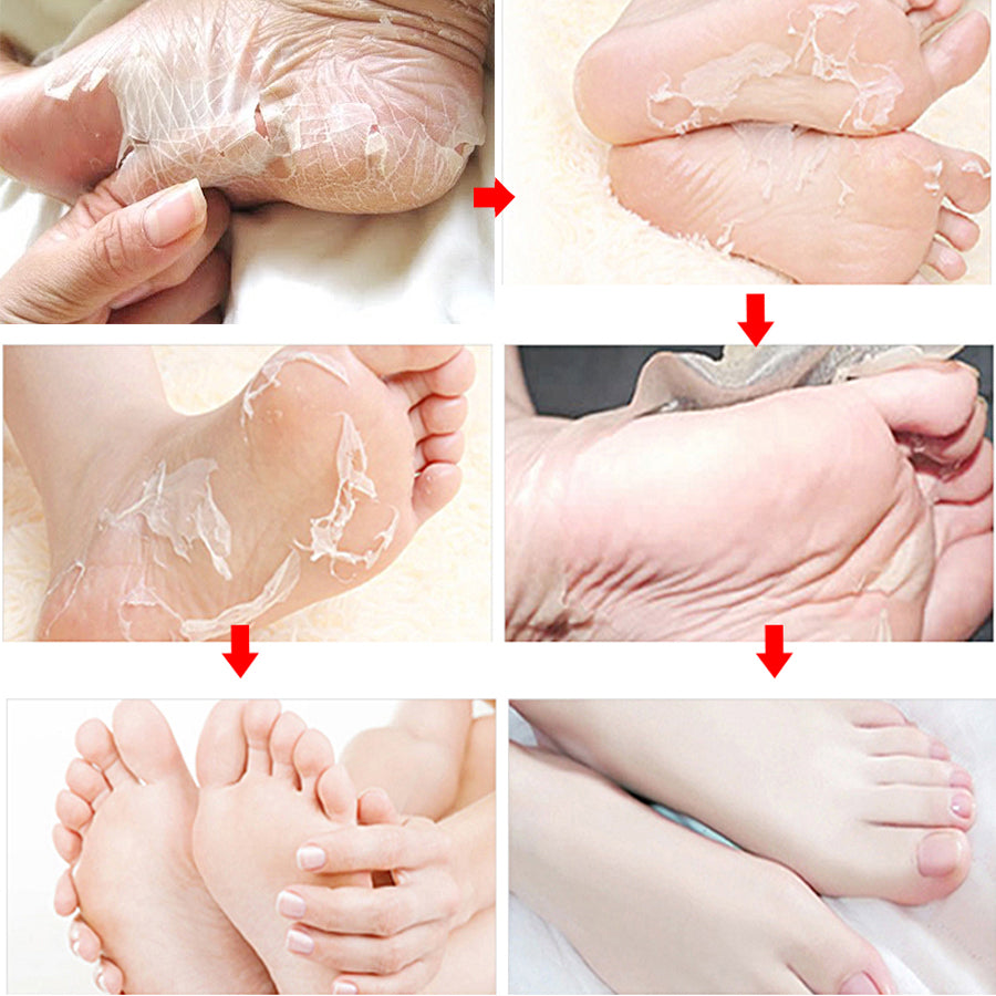 Load image into Gallery viewer, Ultimate Foot Peeling Mask