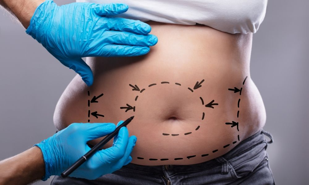 The Main Benefits of Getting Cosmetic Surgery
