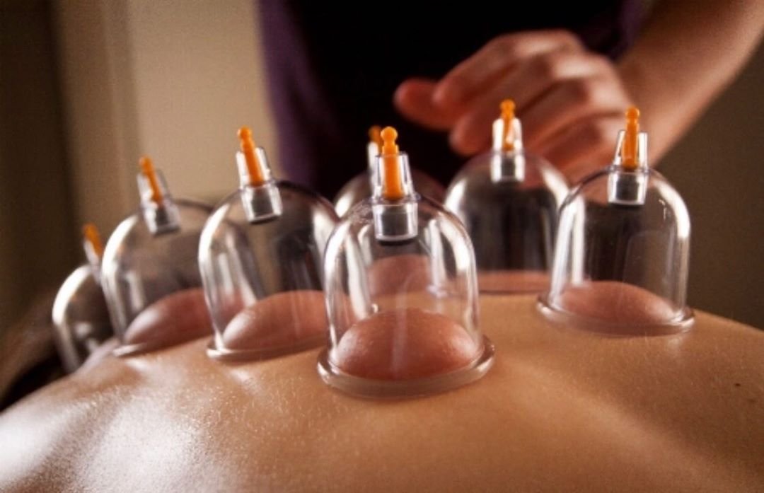 60% OFF TODAY - Ancient Wisdom - Electric Vacuum Cupping - 12 Cups