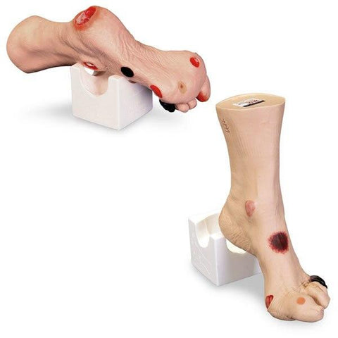 Wilma Wound Foot - Shop | LivCor Australia