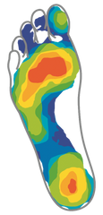 Image of foot from pedal assessment showing pressure points