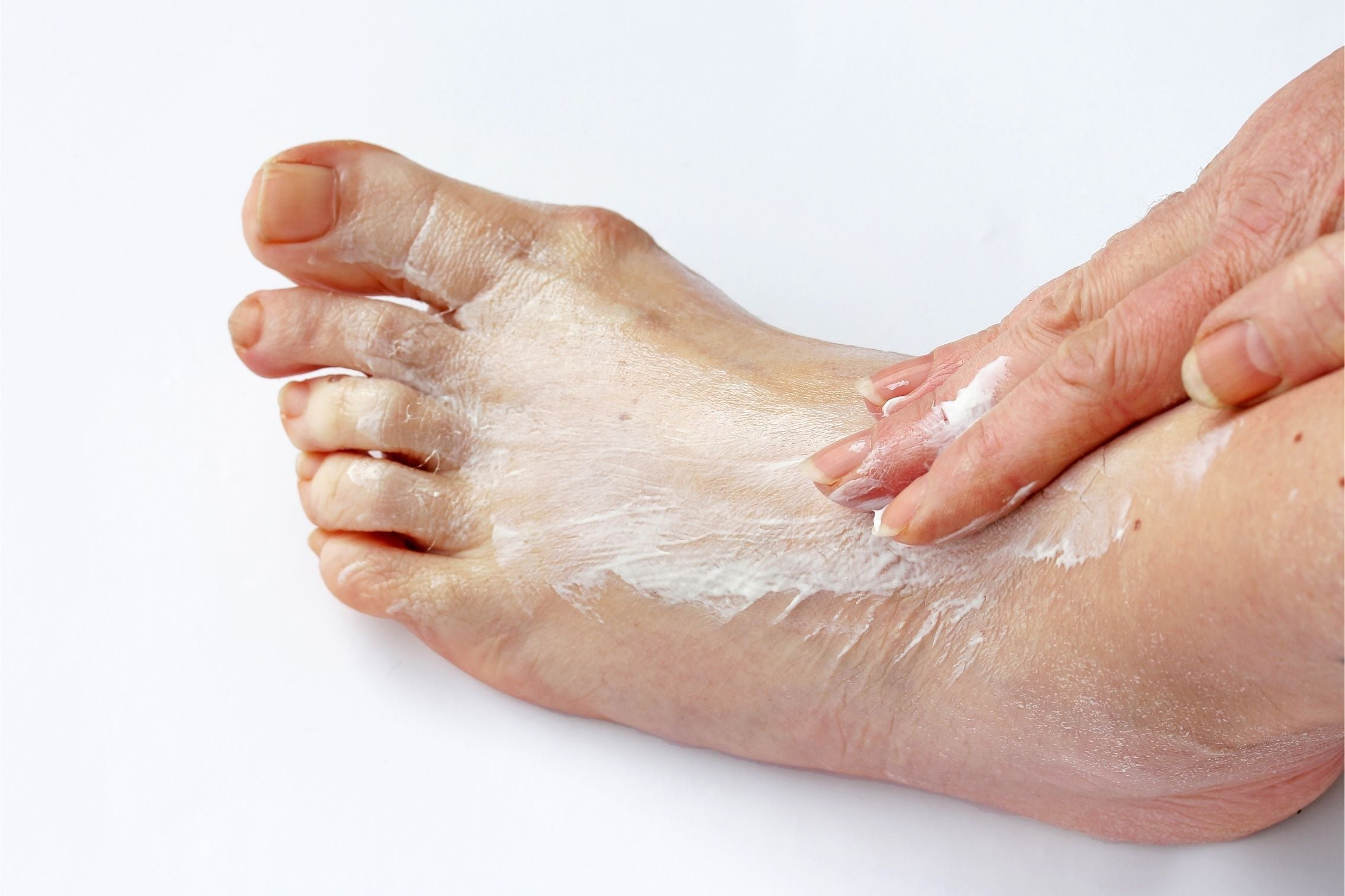 foot cream being applied