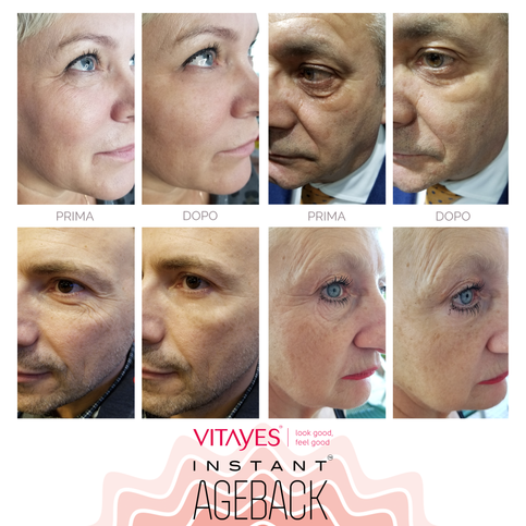 INSTANT AGEBACK - Instant effect lifting cream: Wrinkles, bags and dark circles.
