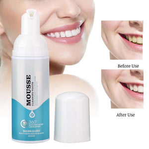 Teeth Whitening Mousse (Buy 1 Take 1)