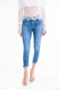Skinny classic jeans with folded hem