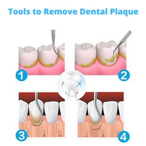 Dental Care Kit for Plaque Removal