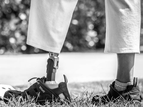 How I Stopped My Phantom Limb Pain
