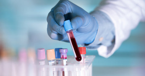 Does cannabis show up in a standard blood test?