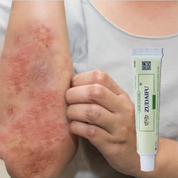 """Get the Pure Natural Remedy for Eczema and say Goodbye to Damaged Skin"""