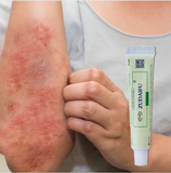 Advanced Psoriasis & Eczema Cream - Engineracing