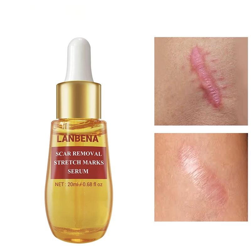 Natural Serum Remove Acne Scar - Engineracing