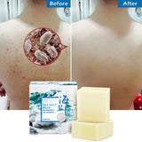 Natural Soap For Eczema - Engineracing