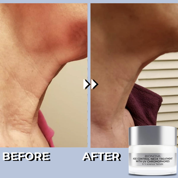 Age Control Neck Treatment with UV Chromophores | Before and After | Results