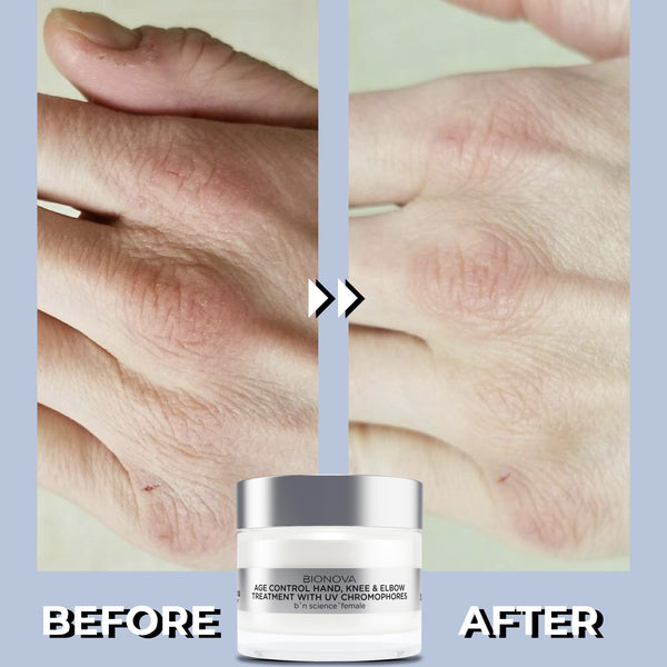 Age Control Hand, Elbow & Knee Treatment with UV Chromophores | Before and After | Results