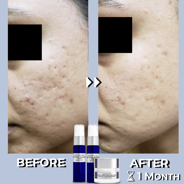 Acne + Acne Scar Treatment Set Before and After Results- 1 Month