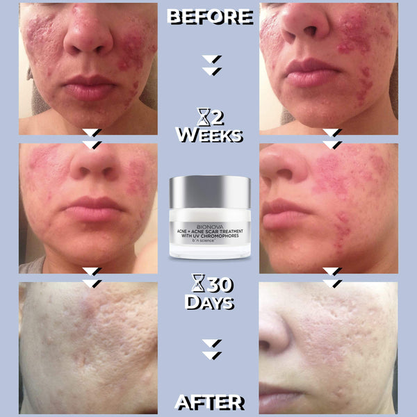 Acne + Acne Scar Treatment Before and After Results- 2 Weeks, 30 Days (1 Month)