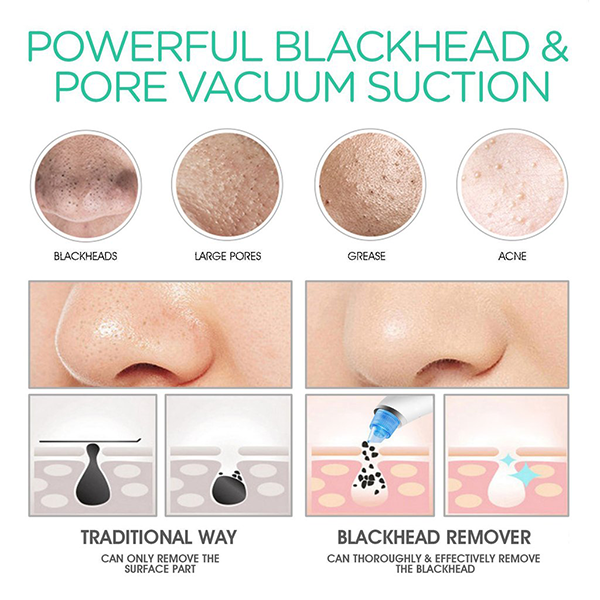 Black Head Diamond Pore Vacuum Cleaner