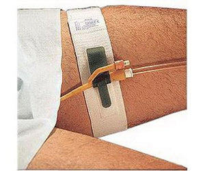 Dale Hold-n-Place Foley Catheter Holder - Fits Up to 30""