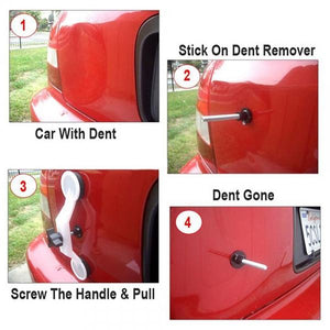 Pops A Dent The Dent & Ding Repair Kit