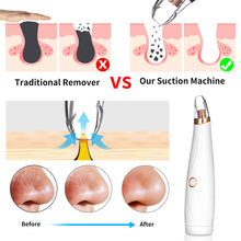 Load image into Gallery viewer, Portable Electric Three-In-One Blackhead Remover