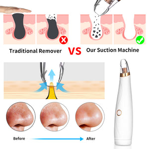 Portable Electric Three-In-One Blackhead Remover