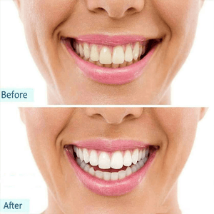 [BUY 1 GET 1 FREE] Instant Clean™ Intensive Teeth Whitening Pen