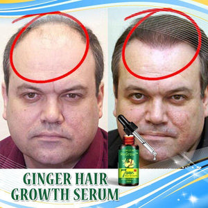 Regrow™ 7 Day Ginger Germinal Hair Growth Serum