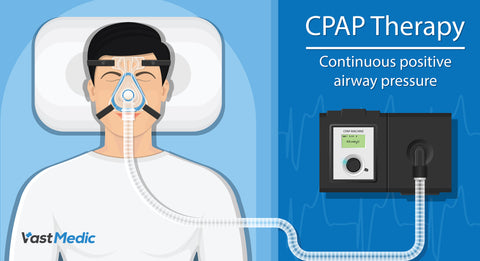 Are CPAP Cleaning Machines Worth It?