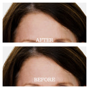 Ageless Beauty Forehead Treatment Pads | Dreambox Beauty